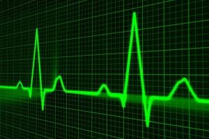 Billedet viser en monitor. Siden handler om at hjerteanfald kan få PTSD.