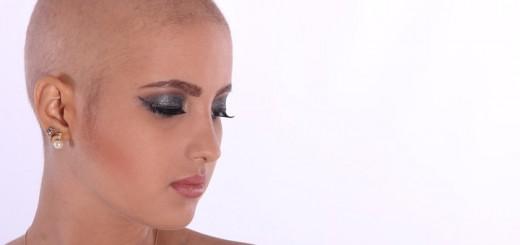 Billedet viser en kvinde med kræft. Siden handler om at kraft kan medføre PTSD.
