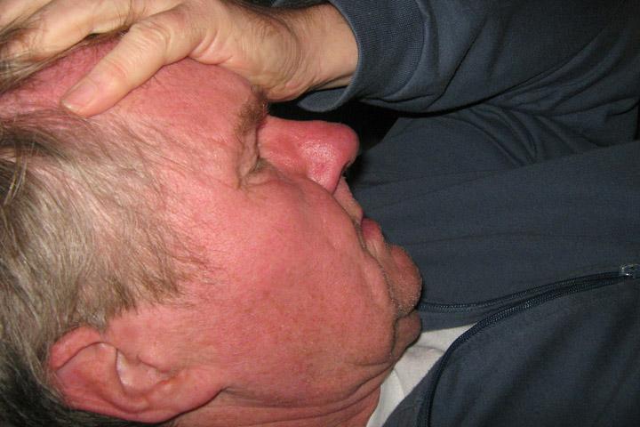 Billedet viser en mand med en hjerneblødning. Siden handler om PTSD hos overlevere af en hjerneblødning.